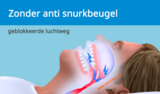 SomnoGuard AP2 snurkbeugel_